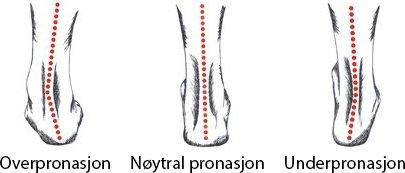 Hva er pronasjon? Bildet illustrerer hvordan høyre fot vanligvis avslutter steget